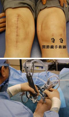 関節鏡視下手術